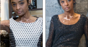 'Next' Clothing Hires Burns Victim To Model At UK Store Opening