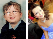 Partially Blind Girl Defies The Odds To Become UK Beauty Queen