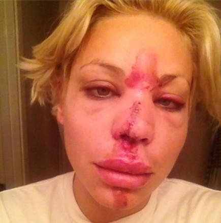 Lisa D'amato injury