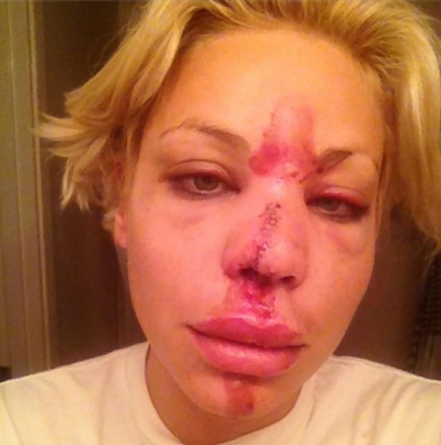 Lisa damato on celebrity rehab