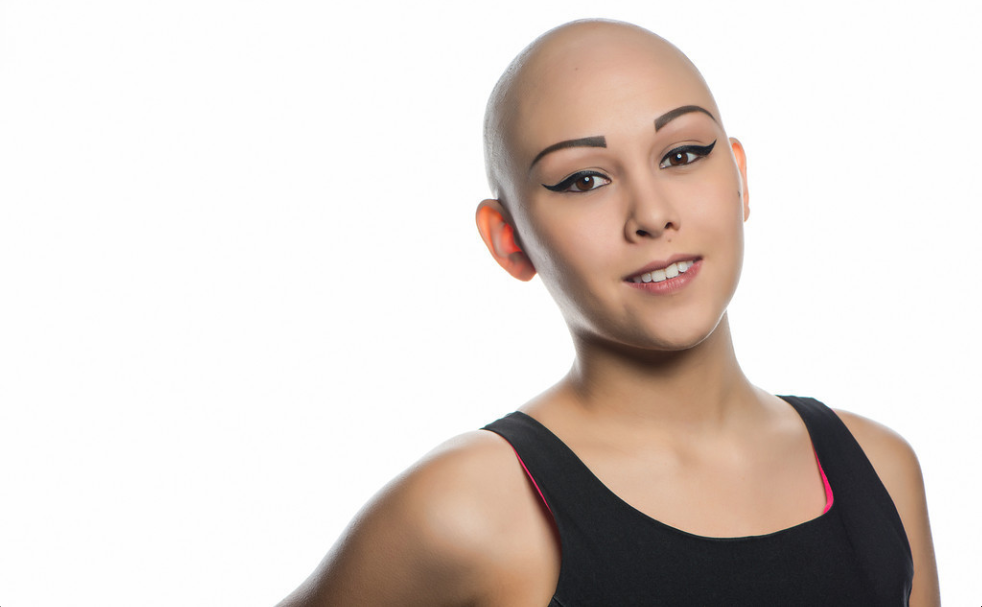 GirlTalkHQ – Bald Beauty Pageant Queen Wins Crown While ...