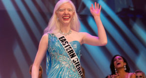 Albino Beauty Queen Gives Inspiring Advice On The Katie Couric Show