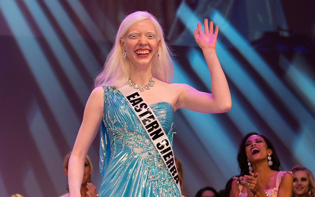 Albino Beauty Queen Gives Inspiring Advice On The Katie