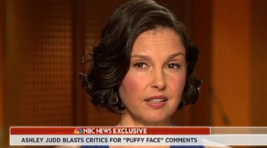 ashley-judd-puffy-face