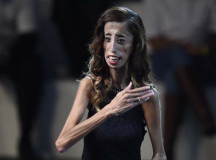 How Lizzie Velasquez Went From Bullying Victim To Hero In 'A Brave Heart' Docu