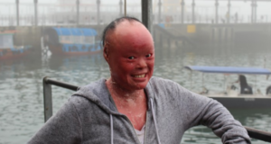 Being Bullied For A Rare Skin Condition Won't Stop Mui Thomas From Building Hope In Others